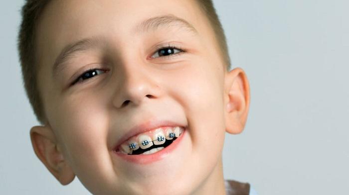 niềng răng cho trẻ từ mấy tuổi