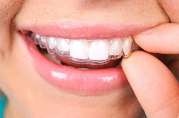niềng răng có bao nhiêu loại