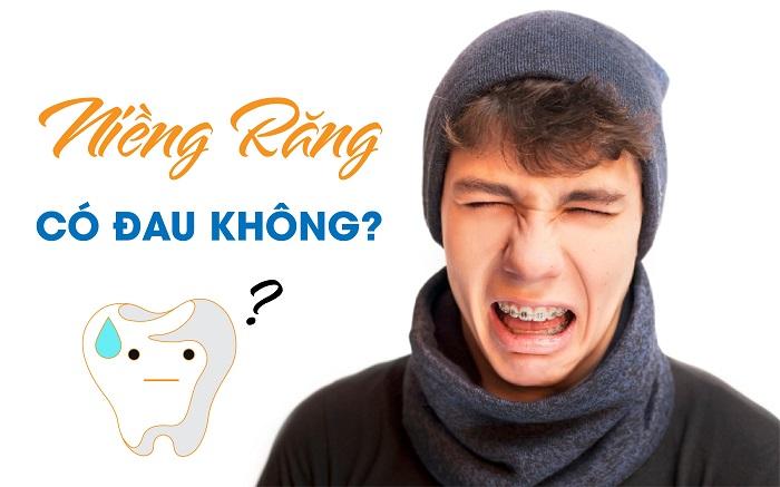 niềng răng có đau không giá bao nhiêu