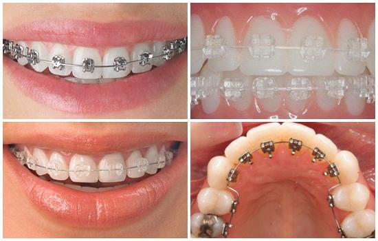 niềng răng có mấy loại