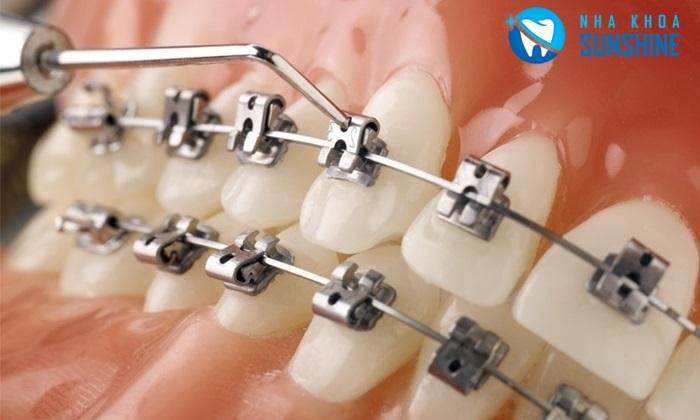niềng răng cửa bị lệch giá bao nhiêu