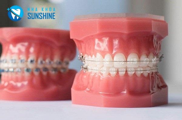 niềng răng dành cho sinh viên