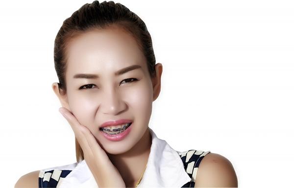 niềng răng đau không ăn được