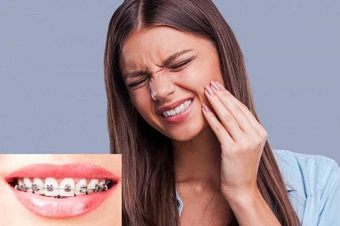 niềng răng đau nhất khi nào