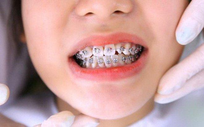 niềng răng dưới 6 tháng
