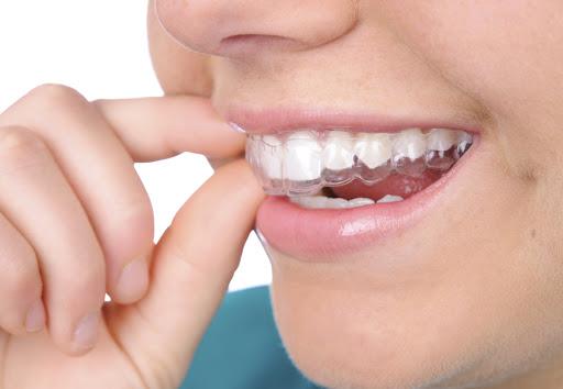 niềng răng giá bao nhiêu