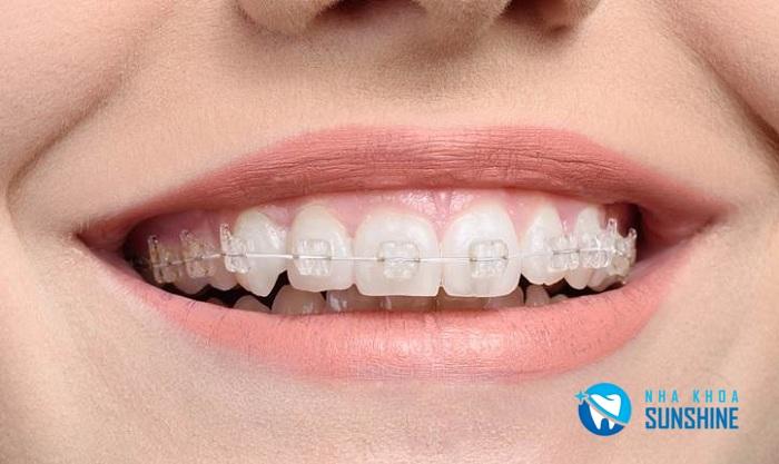 niềng răng giá bao nhiêu ở Đà Nẵng