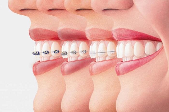 niềng răng giá cả