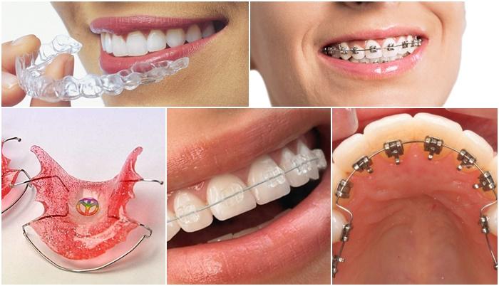 niềng răng giá rẻ TPHCM