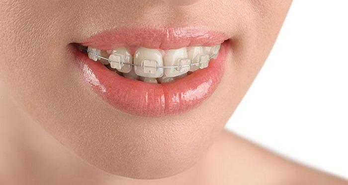 niềng răng giúp mặt đẹp hơn