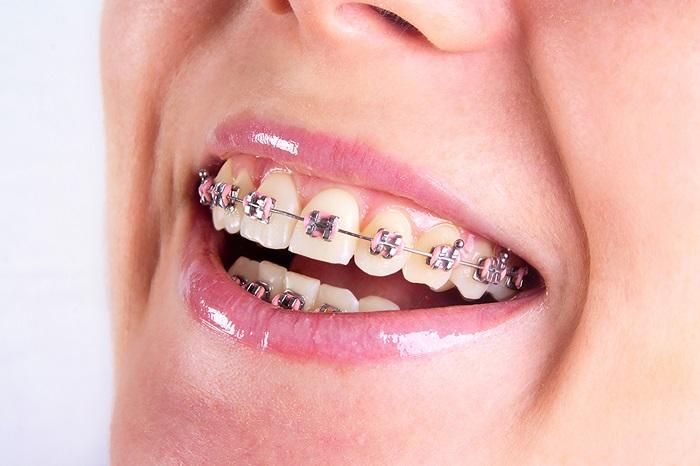 niềng răng hàm dưới giá bao nhiêu