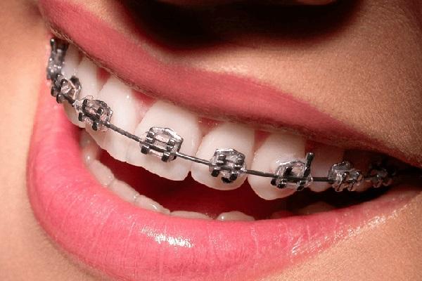 niềng răng hàm dưới mất bao lâu