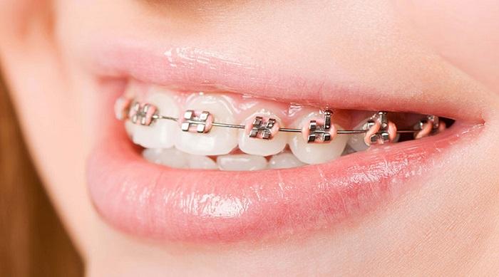 niềng răng hàm trên mất bao nhiêu tiền
