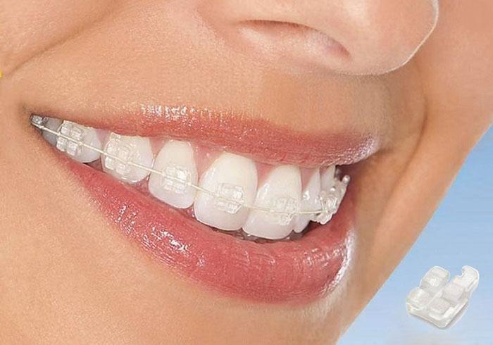 niềng răng hô bằng mắc cài sứ