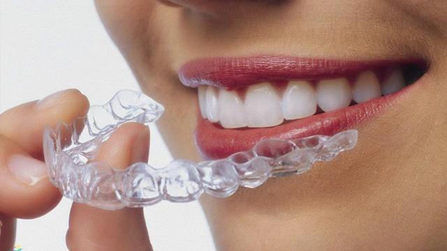 niềng răng hô bằng nhựa
