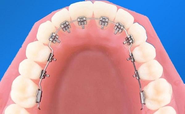 niềng răng hô bên trong