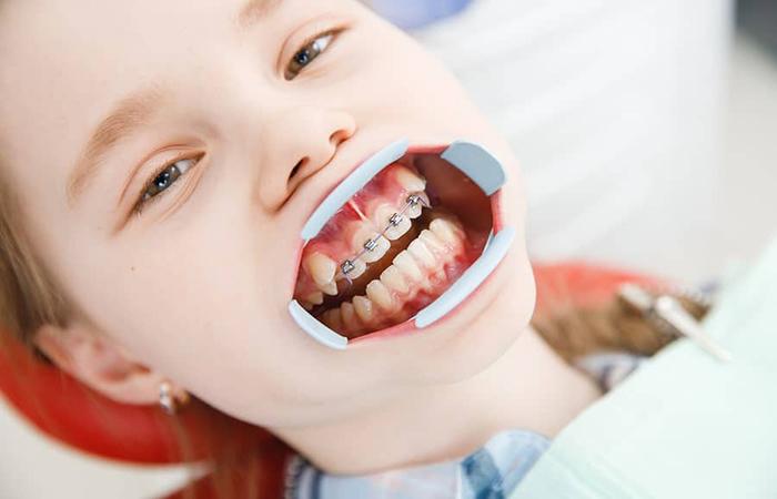 niềng răng hô cho bé