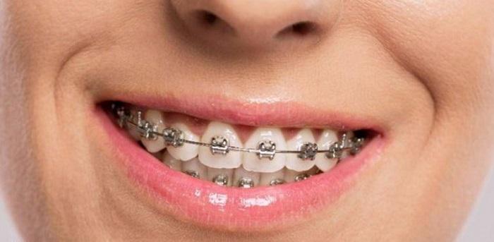 niềng răng hô cho người lớn