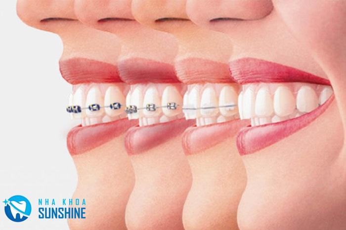 niềng răng hô có hiệu quả không