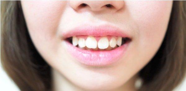 niềng răng hô có thay đổi khuôn mặt
