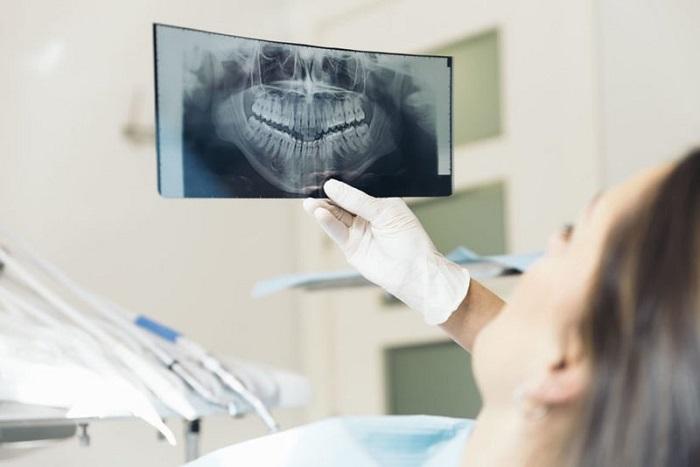 niềng răng hô nhẹ mất bao lâu