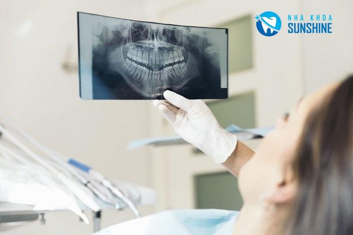 niềng răng hô xong bị móm