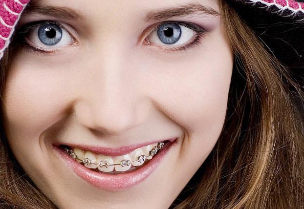 niềng răng inox đơn giản