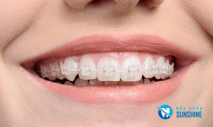 niềng răng khểnh có đau không