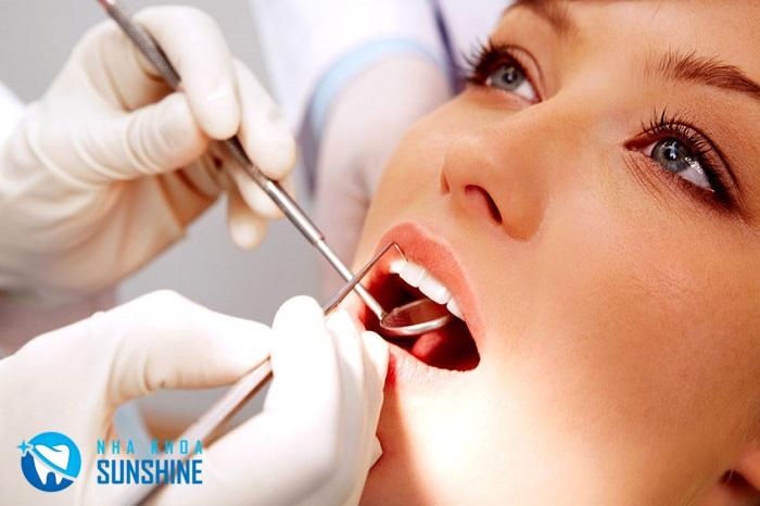 niềng răng khểnh hàm dưới