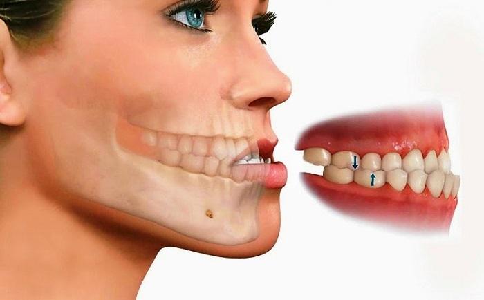 niềng răng khi bị móm