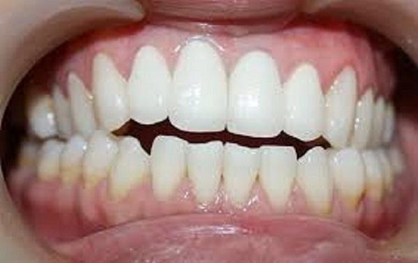 niềng răng khớp cắn hở mất bao lâu