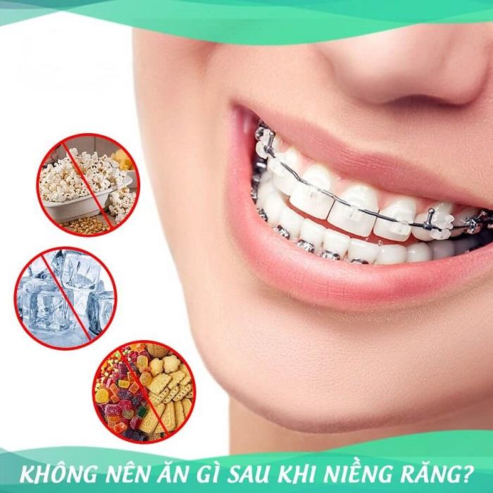 niềng răng kiêng ăn gì