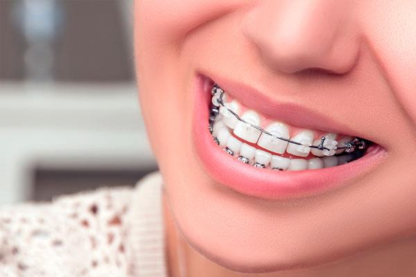 niềng răng mắc cài 3M là gì
