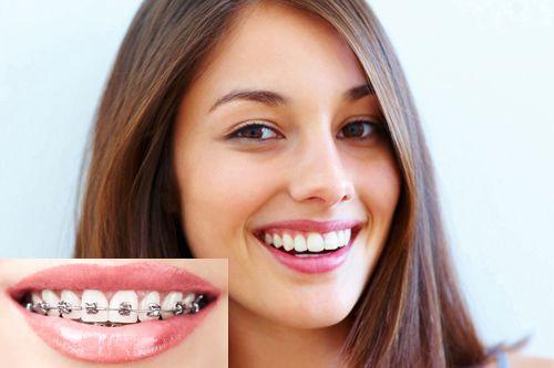 niềng răng mắc cài buộc chun 3M UGLS