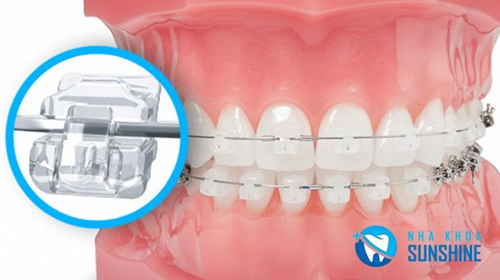 niềng răng mắc cài Composite