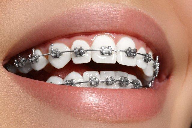 niềng răng mắc cài kim loại có khóa