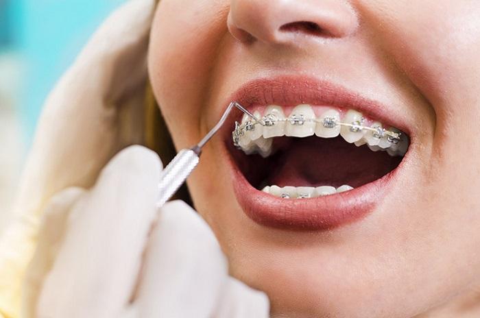 niềng răng mắc cài kim loại thường giá bao nhiêu
