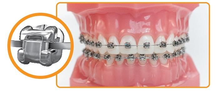 niềng răng mắc cài kim loại tự buộc giá bao nhiêu