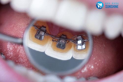 niềng răng mắc cài bên trong giá bao nhiêu