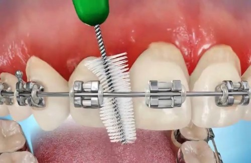 niềng răng mắc cài pha lê có tốt không