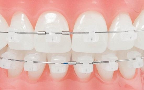 niềng răng mắc cài sứ 1 hàm