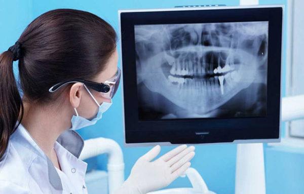 niềng răng mắc cài sứ bao lâu