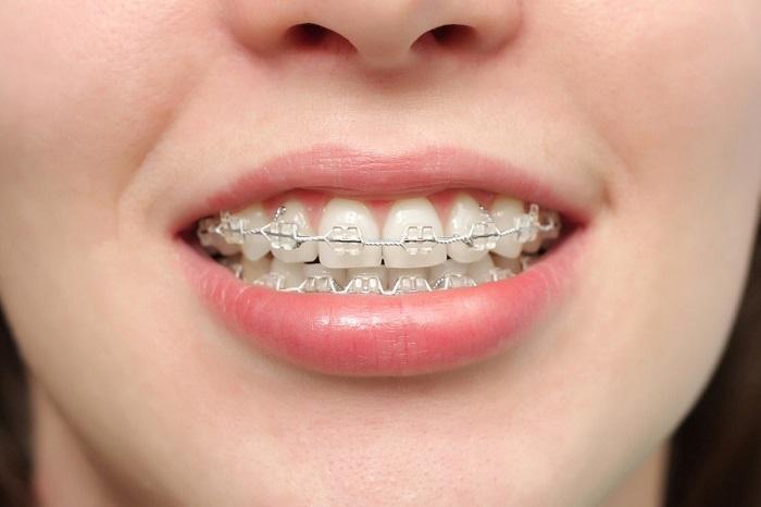 niềng răng mắc cài sứ chuẩn