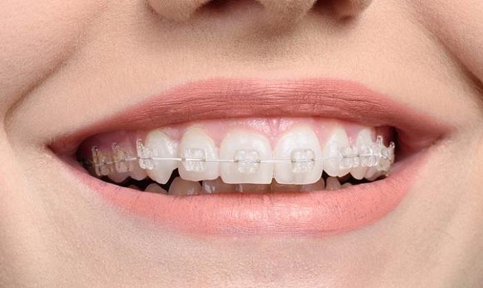 niềng răng mắc cài sứ có đau không