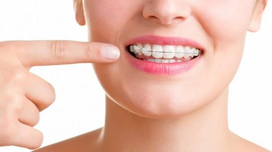 niềng răng mắc cài sứ có hiệu quả không