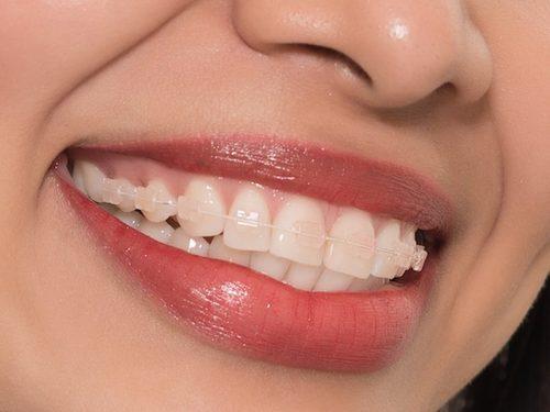 niềng răng mắc cài sứ Hà Nội