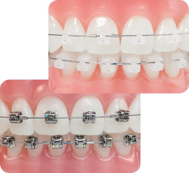 niềng răng mắc cài sứ hay kim loại