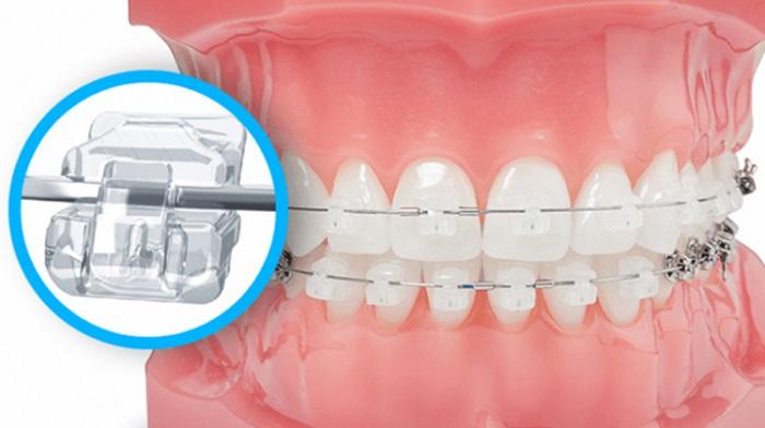 niềng răng mắc cài sứ là gì
