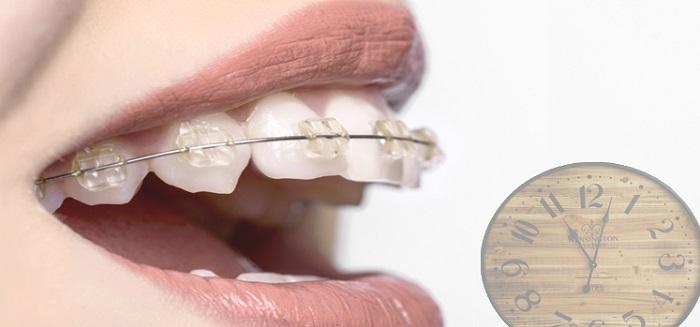 niềng răng mắc cài sứ trong bao lâu