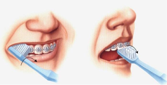 niềng răng mắc cài tự buộc là gì